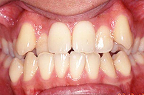 【19歳男性】抜歯なし 治療前