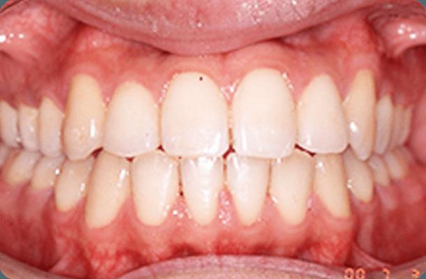 【19歳男性】抜歯なし 治療後