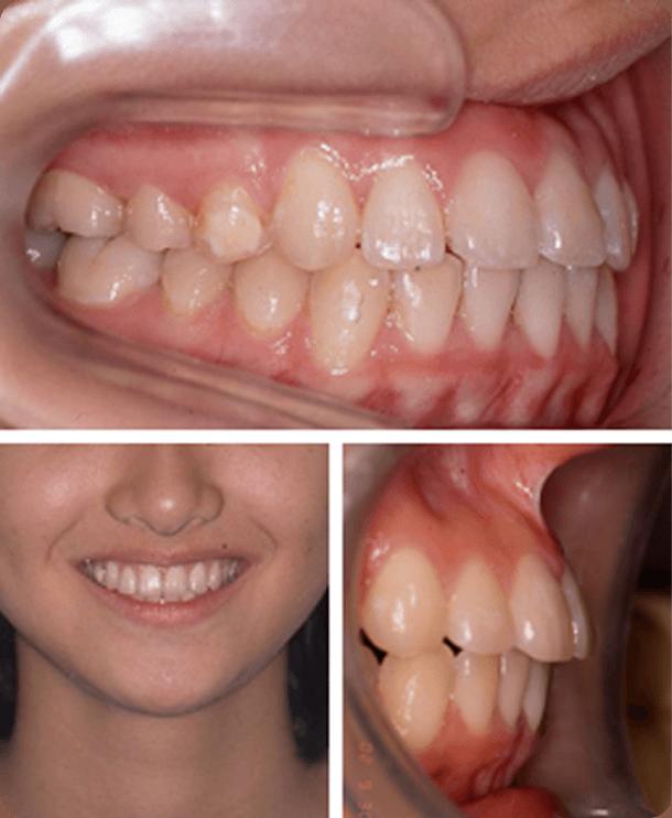 【15歳女性】抜歯なし 治療後