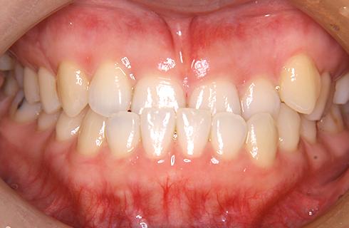 【31歳女性】抜歯なし 治療前