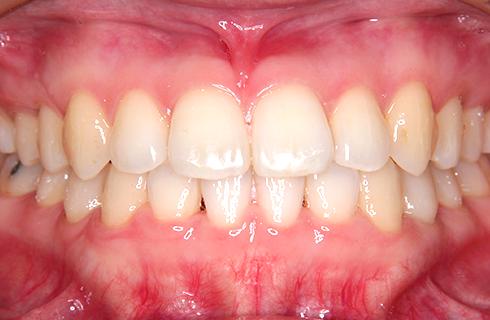 【31歳女性】抜歯なし 治療後