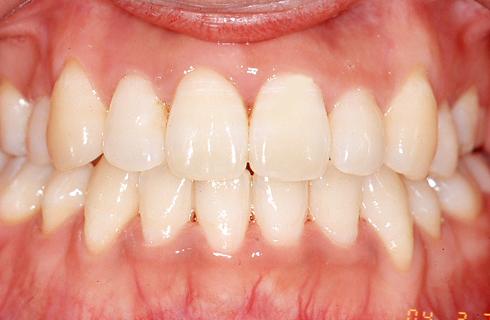 【32歳女性】舌側矯正 治療後