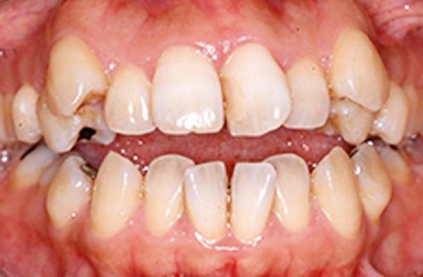 【34歳女性】抜歯あり 治療前