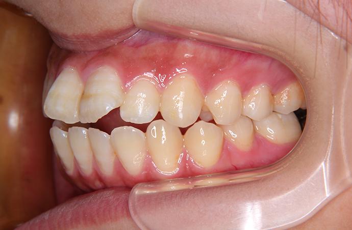 【26歳女性】舌側矯正 治療前