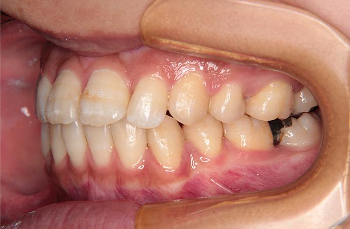 【26歳女性】舌側矯正 治療後