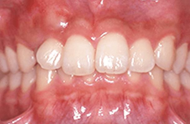 【17歳男性】抜歯なし 治療前