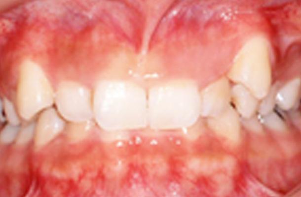 舌側矯正 治療前