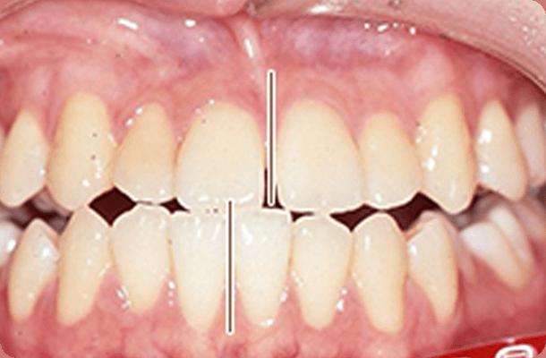 【20歳女性】抜歯なし 治療前