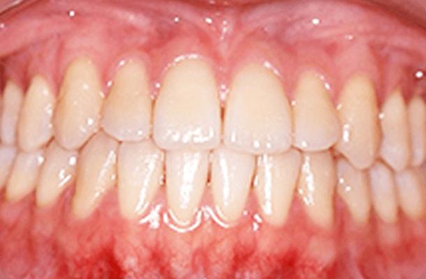 【20歳女性】抜歯なし 治療後