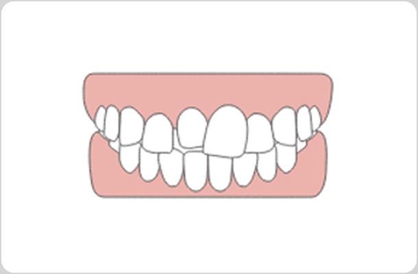 治療前の歯の歯並びが悪い状態のイラスト
