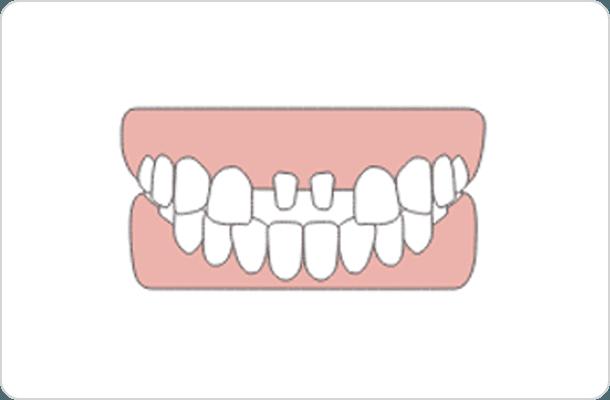 治療箇所の歯を部分的に削り、クラウンをかぶせるところのイラスト