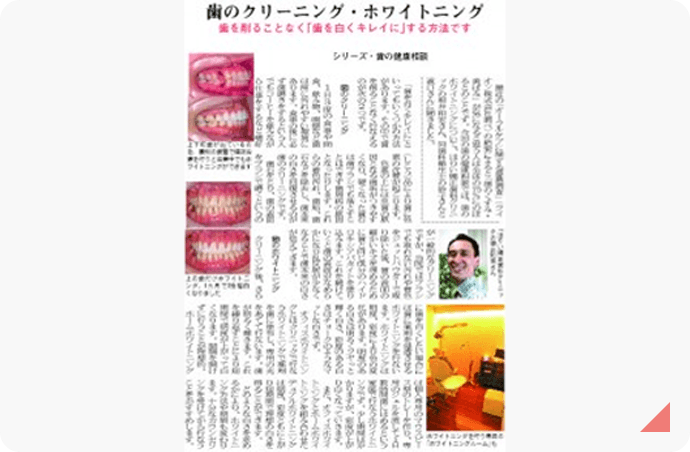 歯のクリーニング・ホワイトニング 記事