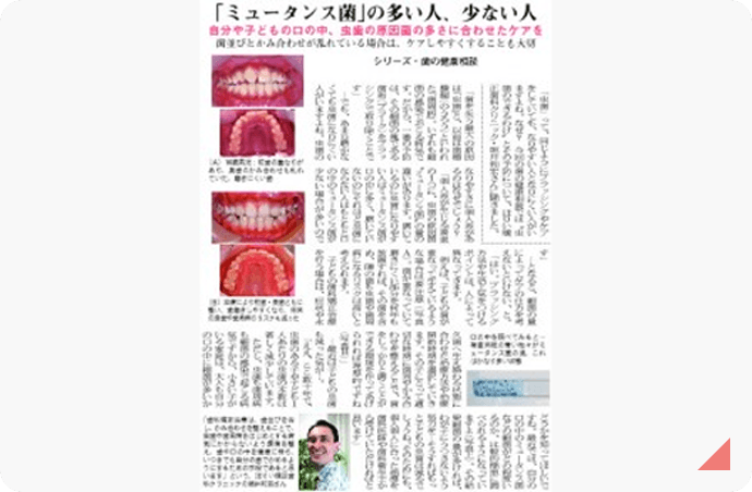 「ミュータンス菌」の多い人、少ない人 記事