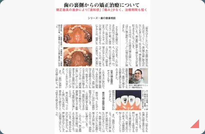 舌側からの歯列矯正について 記事