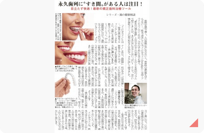 永久歯列に〝すき間〟がある人は注目! 記事