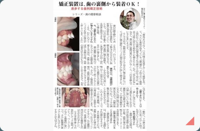矯正装置は、舌側から装着OK! 記事