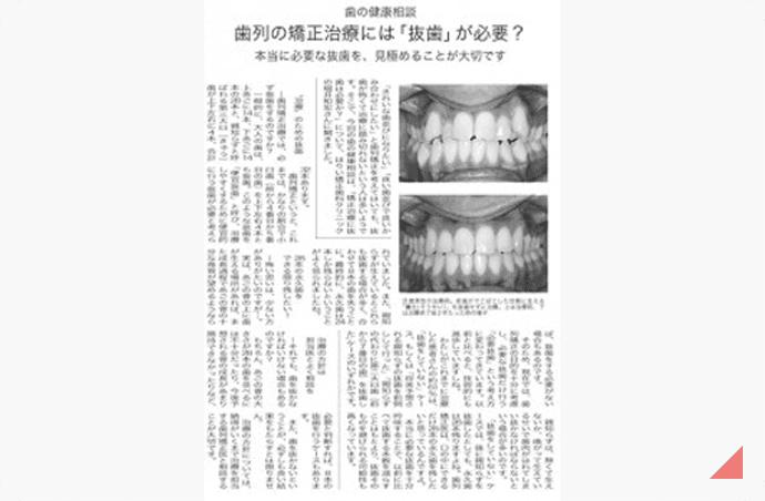 歯列矯正治療には「抜歯」が必要? 記事