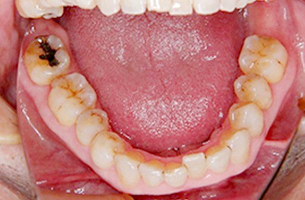 下顎前歯がずれている写真