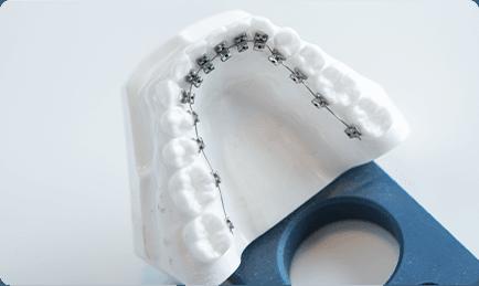 マルチブラケット(舌側)の写真