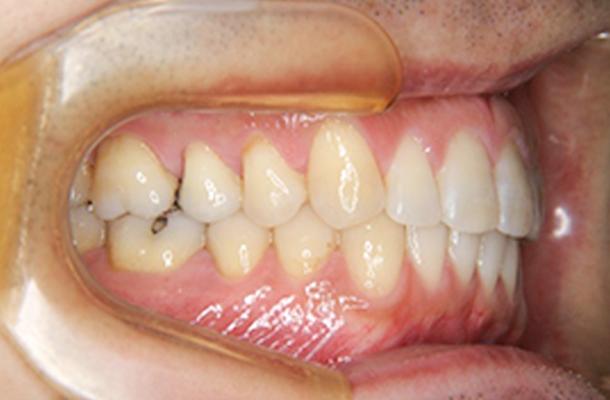 歯がきれいに並んでいて、且つ、咬み合っている状態の写真