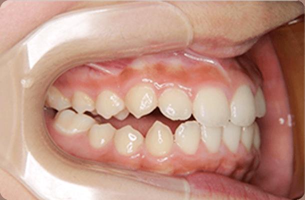 歯はきれいに並んでいるが、咬み合っていない状態の写真